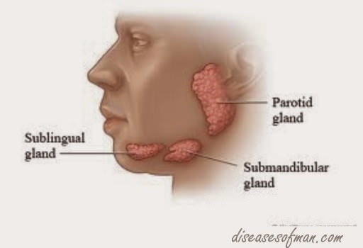 The three major salivary glands   Mumps affects the parotid gland